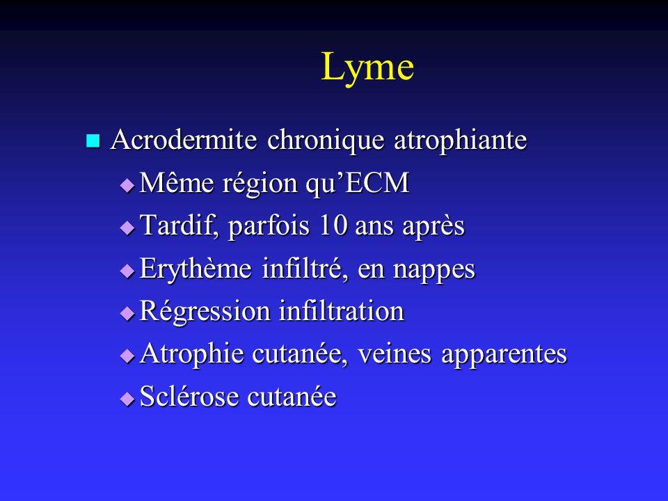 Lyme Acrodermite chronique atrophiante Même région qu'ECM