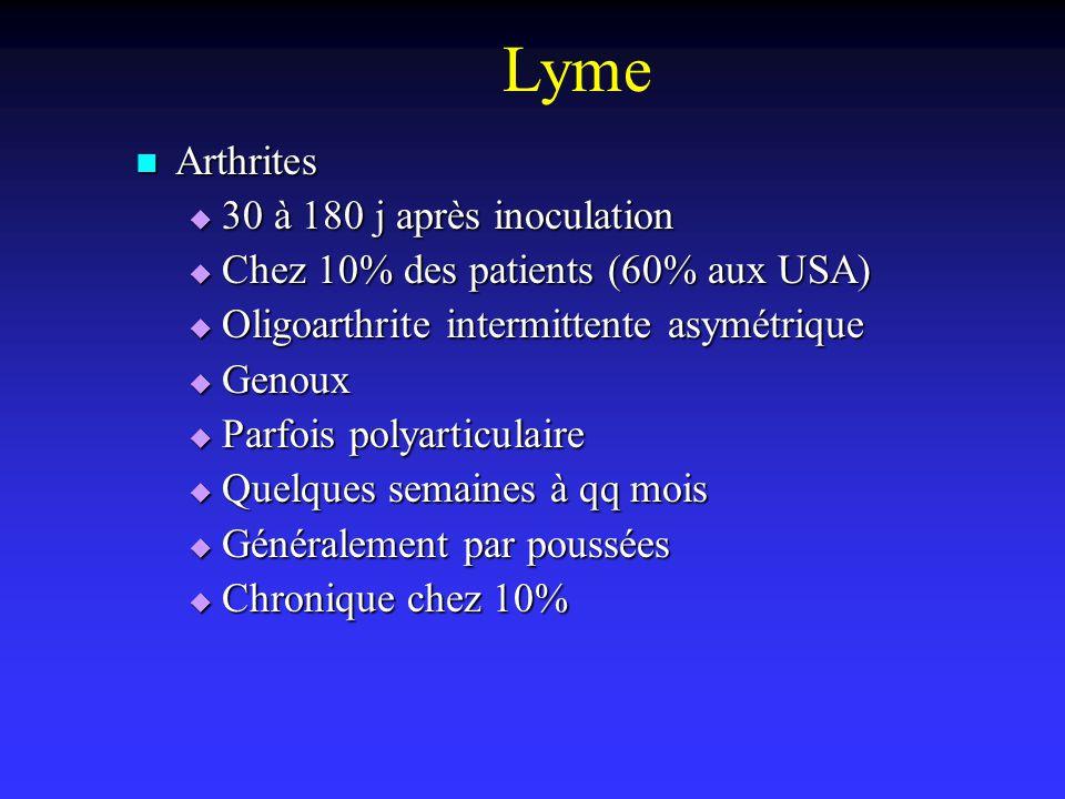 Lyme Arthrites 30 à 180 j après inoculation