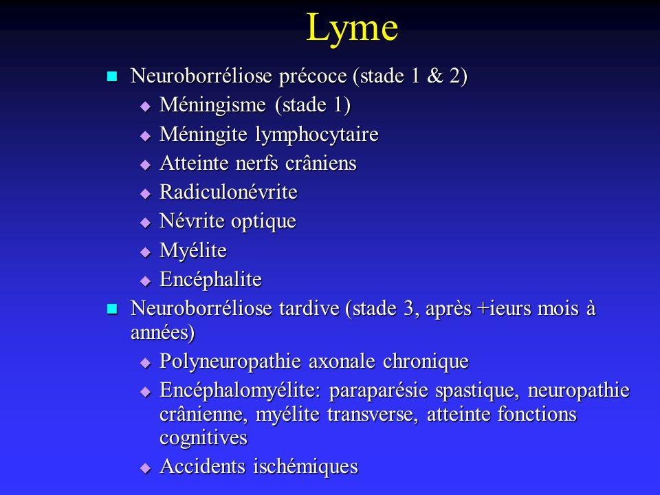Lyme Neuroborréliose précoce (stade 1 & 2) Méningisme (stade 1)