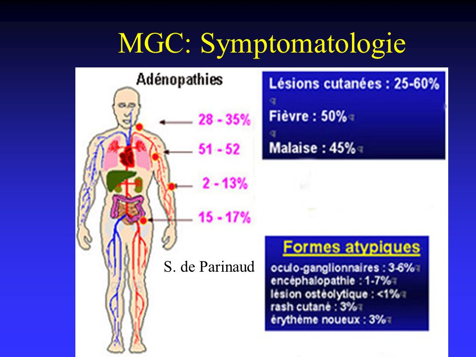 MGC: Symptomatologie S. de Parinaud