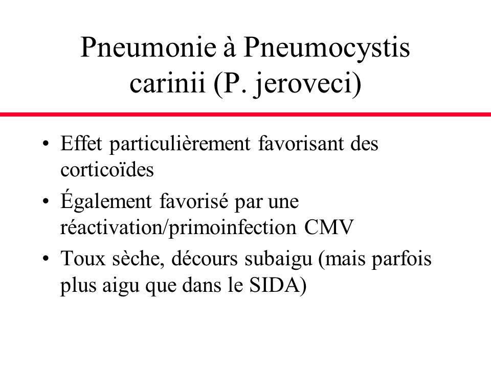 Pneumonie à Pneumocystis carinii (P. jeroveci)
