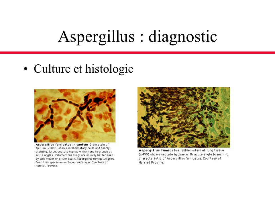 Aspergillus : diagnostic