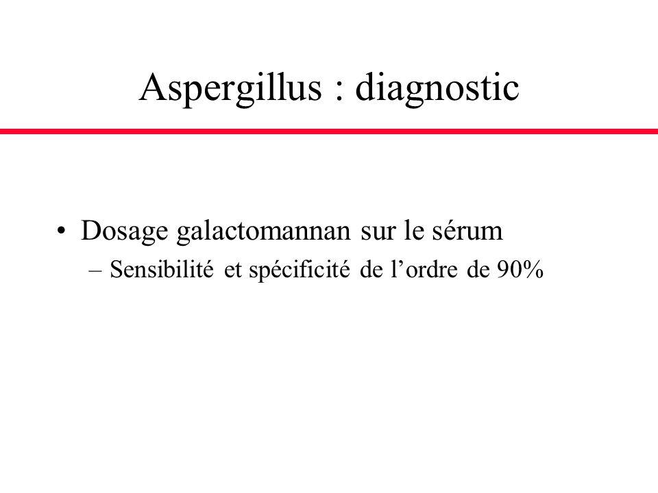 Aspergillus : diagnostic