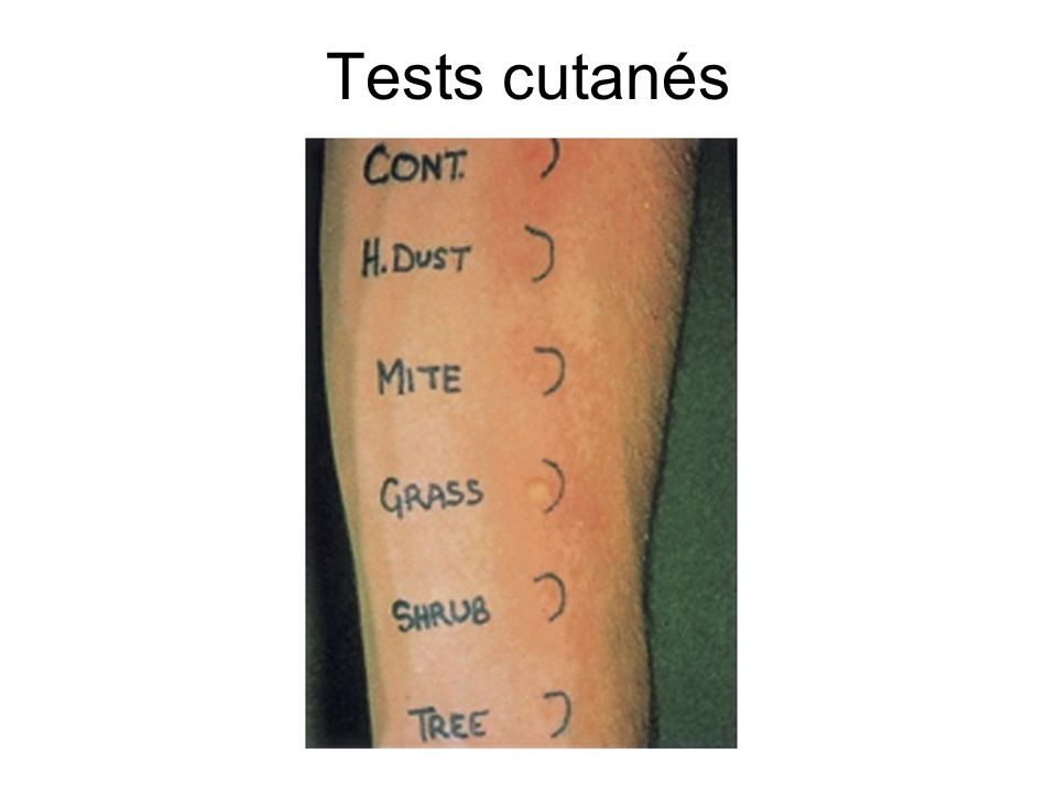 Tests cutanés