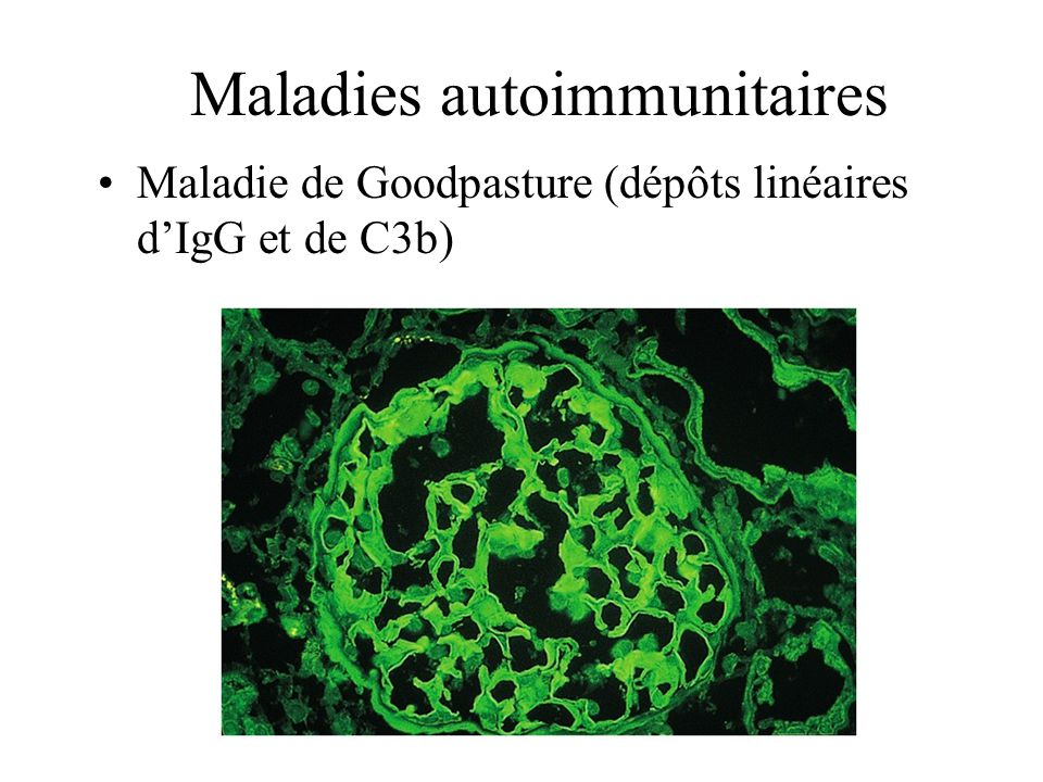 Maladies autoimmunitaires
