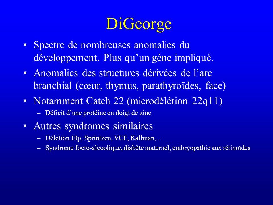 DiGeorge Spectre de nombreuses anomalies du développement. Plus qu'un gène impliqué.