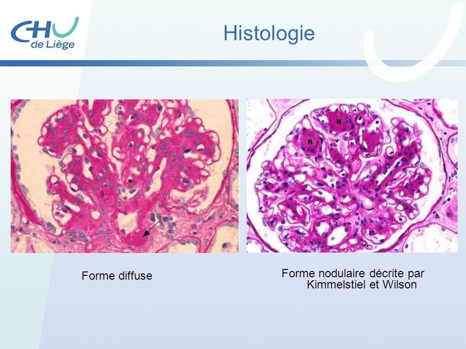 Forme nodulaire décrite par Kimmelstiel et Wilson