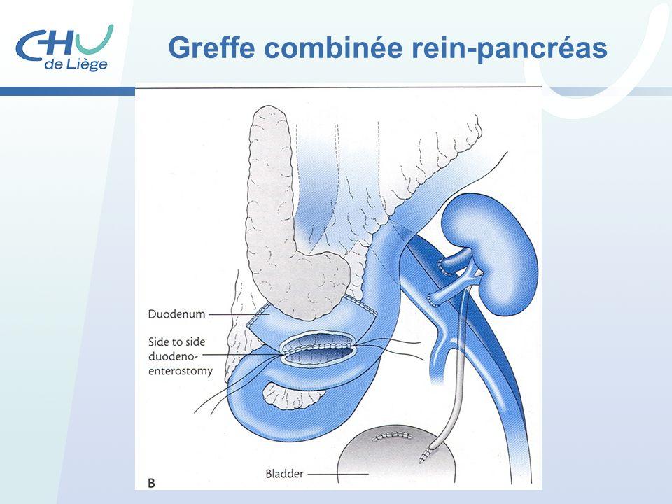 Greffe combinée rein-pancréas