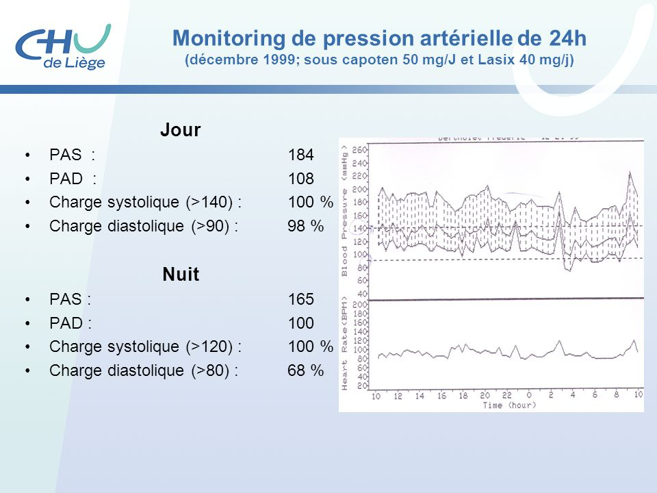 Monitoring de pression artérielle de 24h (décembre 1999; sous capoten 50 mg/J et Lasix 40 mg/j)