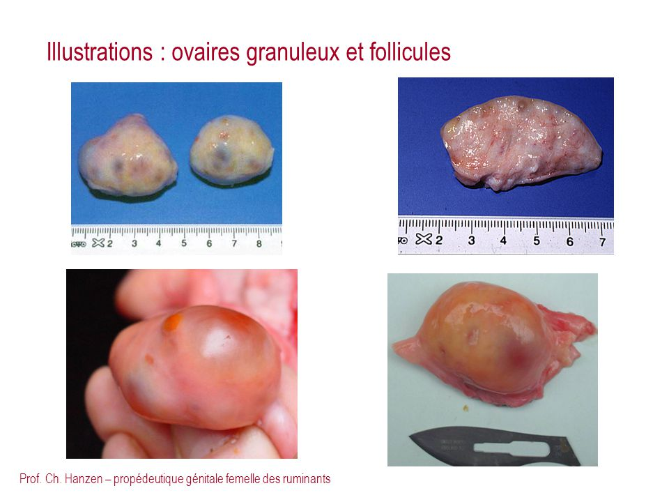 Illustrations : ovaires granuleux et follicules