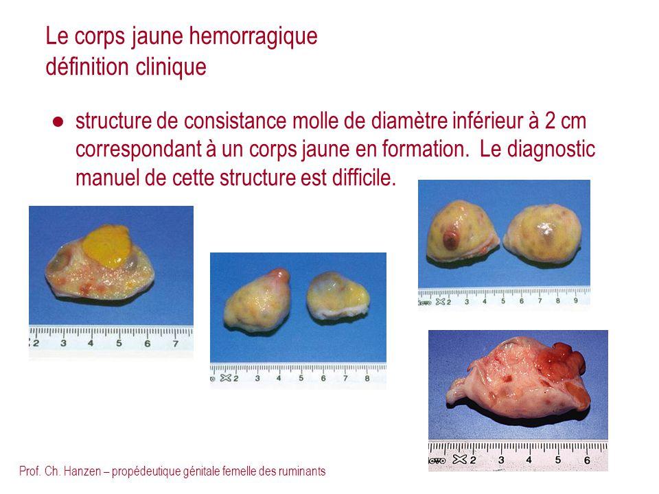 Le corps jaune hemorragique définition clinique