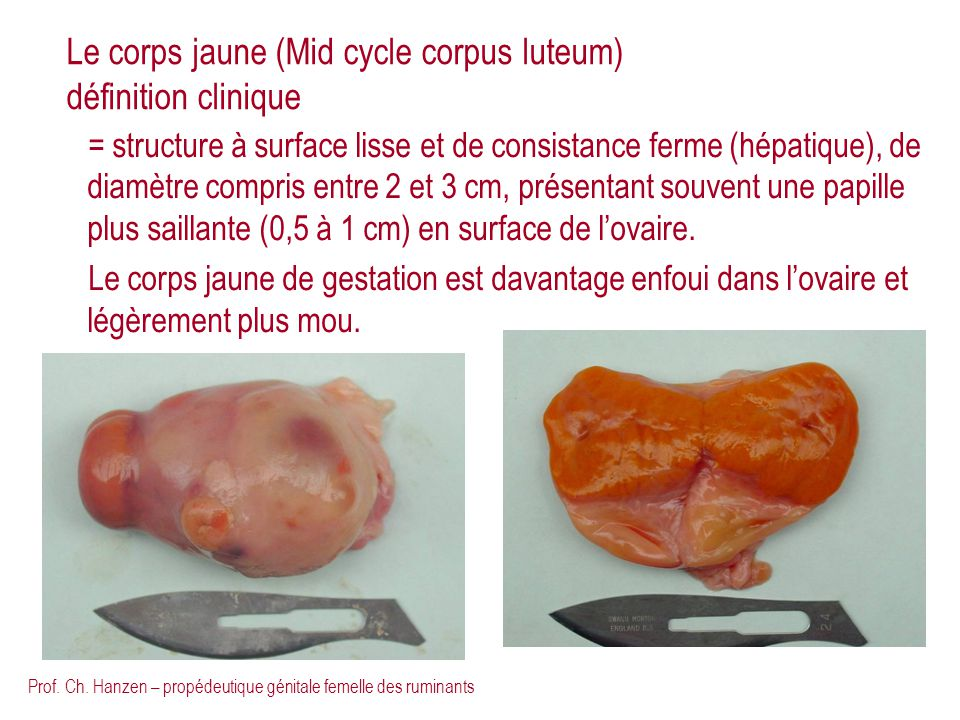 Le corps jaune (Mid cycle corpus luteum) définition clinique