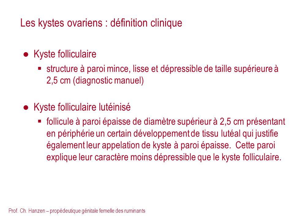 Les kystes ovariens : définition clinique