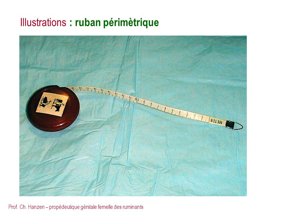 Illustrations : ruban périmètrique