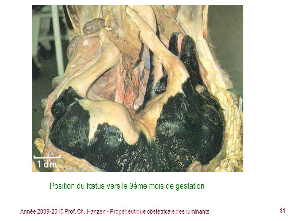 Position du fœtus vers le 9ème mois de gestation