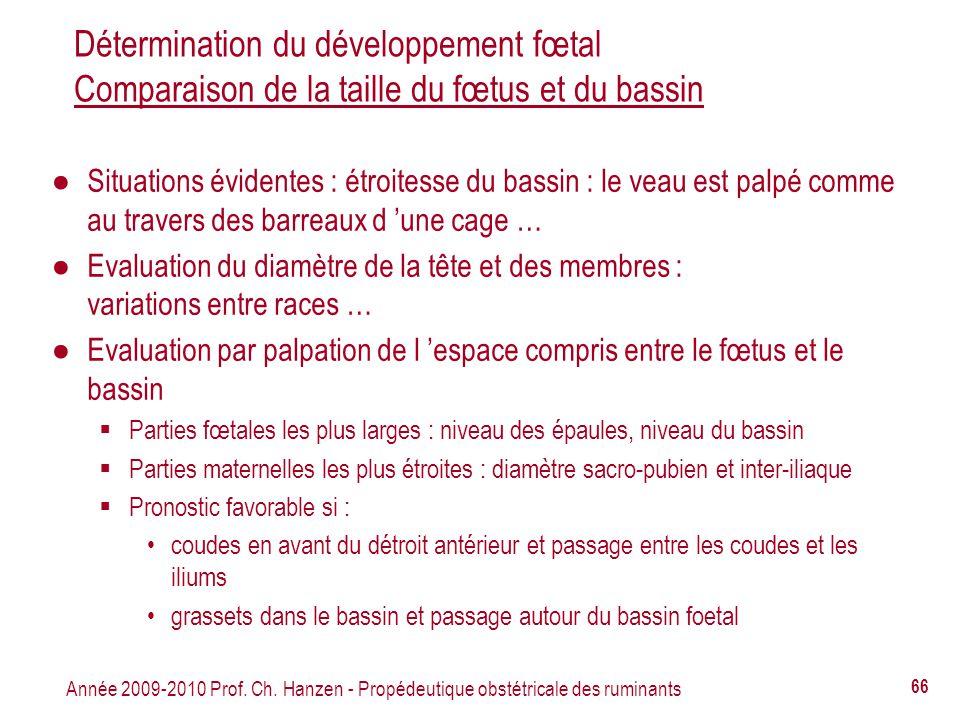 Détermination du développement fœtal Comparaison de la taille du fœtus et du bassin