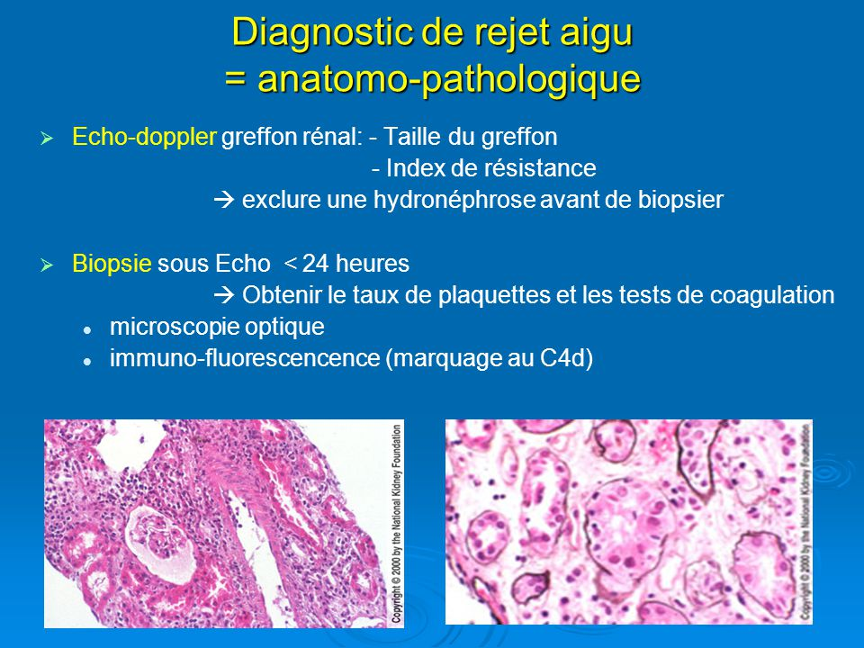 Diagnostic de rejet aigu = anatomo-pathologique