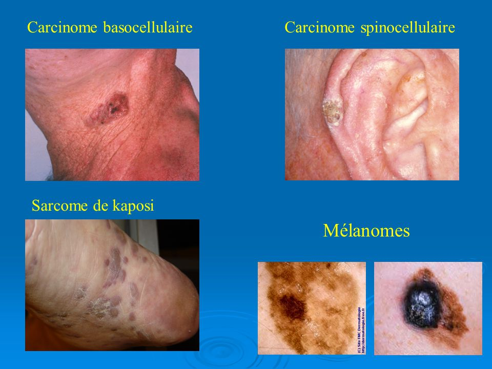 Mélanomes Carcinome basocellulaire Carcinome spinocellulaire