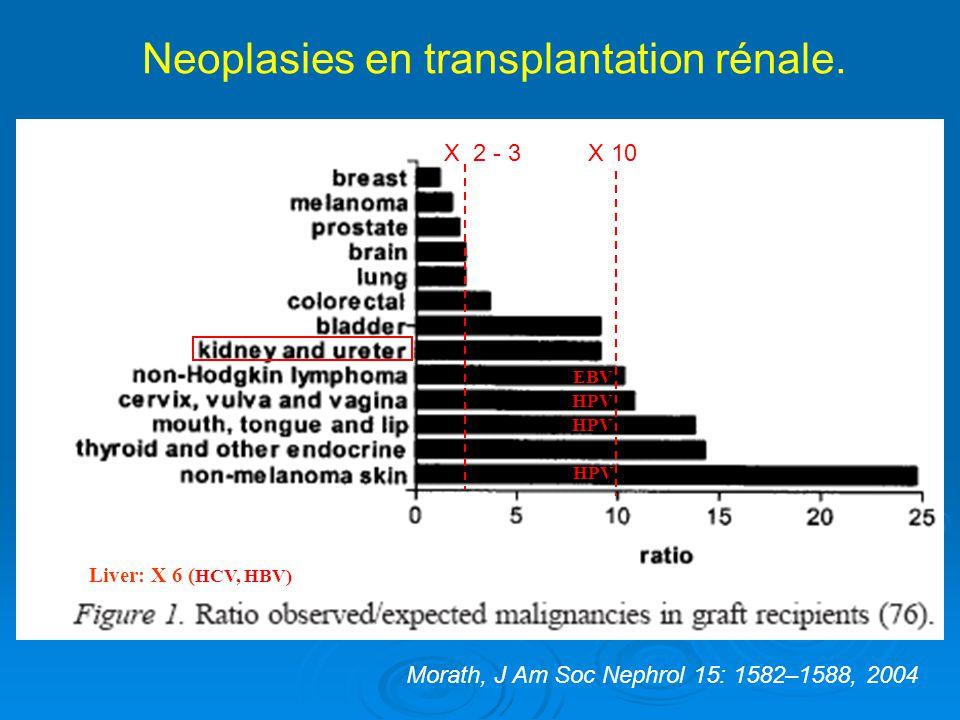 Neoplasies en transplantation rénale.