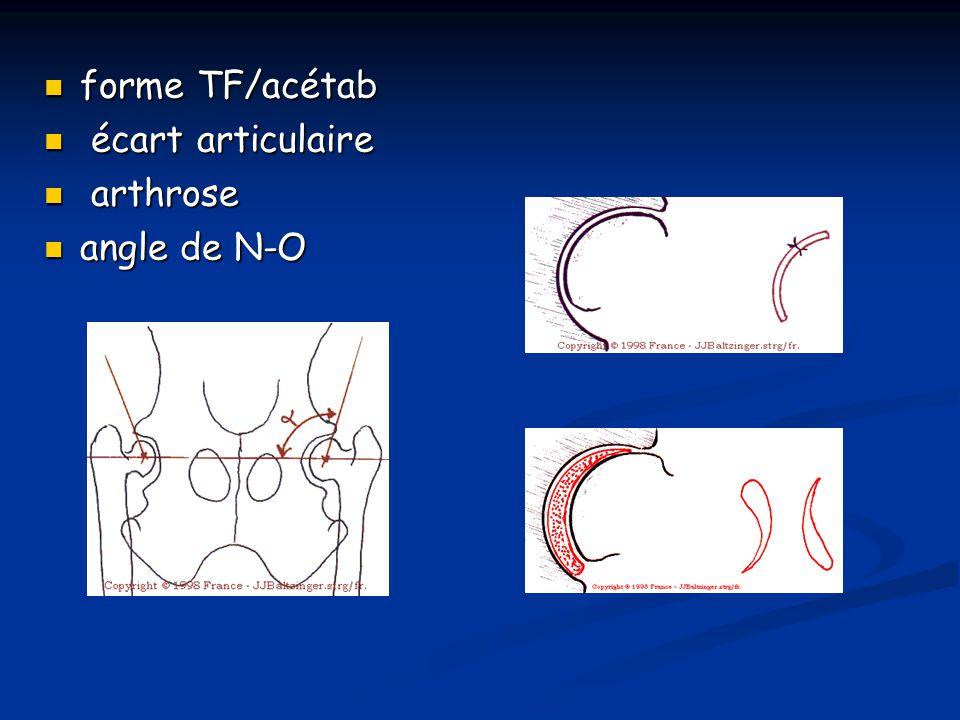 forme TF/acétab écart articulaire arthrose angle de N-O