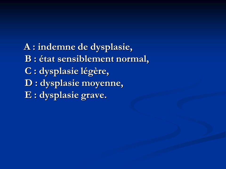 A : indemne de dysplasie, B : état sensiblement normal, C : dysplasie légère, D : dysplasie moyenne, E : dysplasie grave.