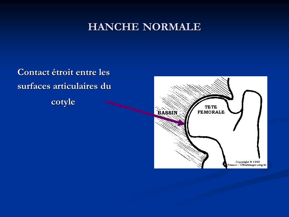 HANCHE NORMALE Contact étroit entre les surfaces articulaires du