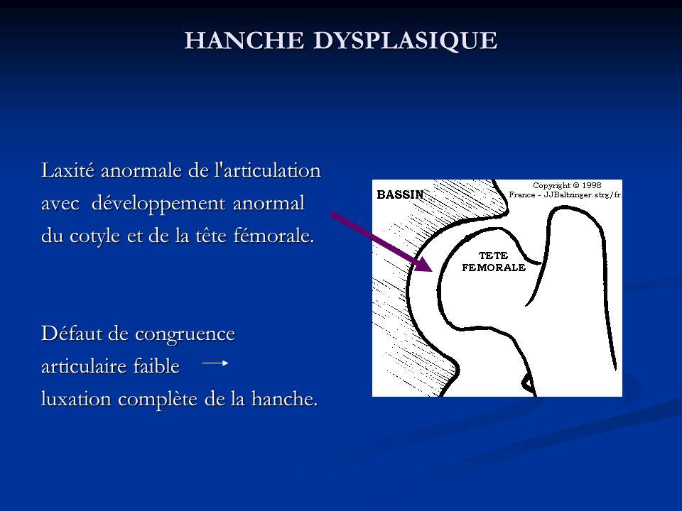 HANCHE DYSPLASIQUE Laxité anormale de l articulation