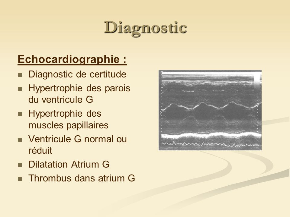 Diagnostic Echocardiographie : Diagnostic de certitude