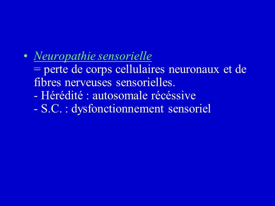 Neuropathie sensorielle = perte de corps cellulaires neuronaux et de fibres nerveuses sensorielles.