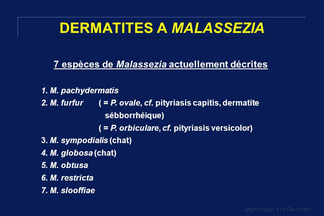 DERMATITES A MALASSEZIA