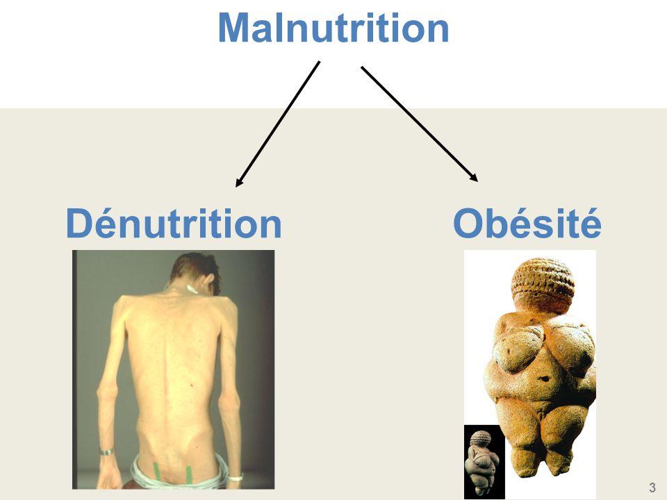 Malnutrition Dénutrition Obésité