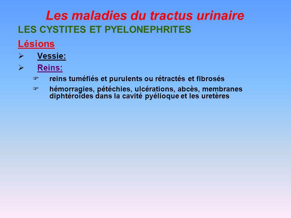 Les maladies du tractus urinaire