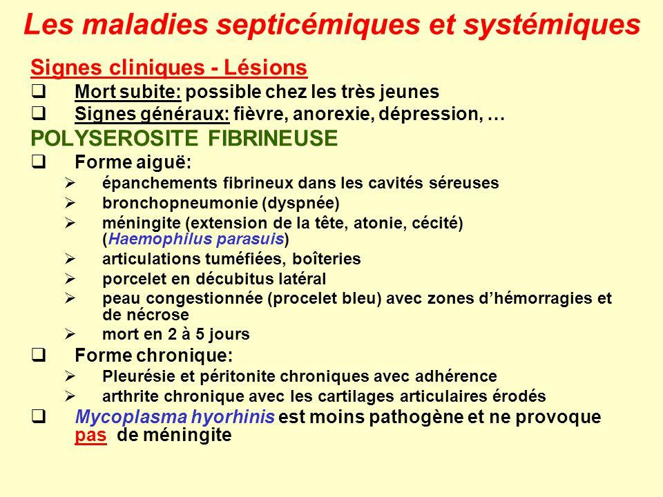 Les maladies septicémiques et systémiques