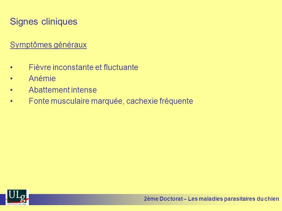 Signes cliniques Symptômes généraux Fièvre inconstante et fluctuante