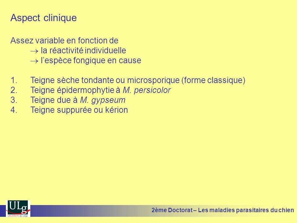 Aspect clinique Assez variable en fonction de