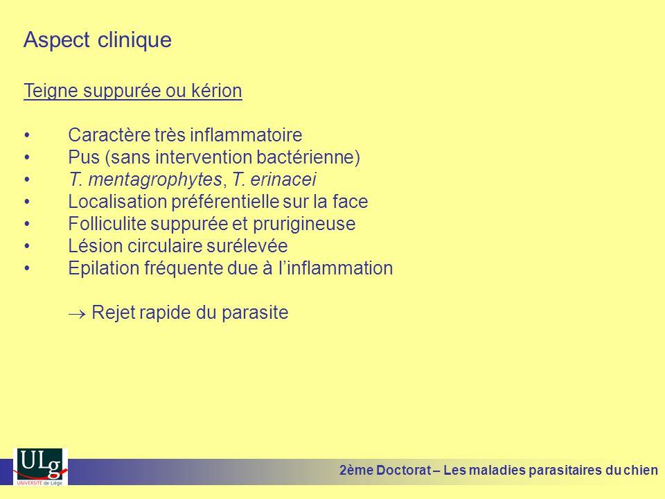 Aspect clinique Teigne suppurée ou kérion Caractère très inflammatoire