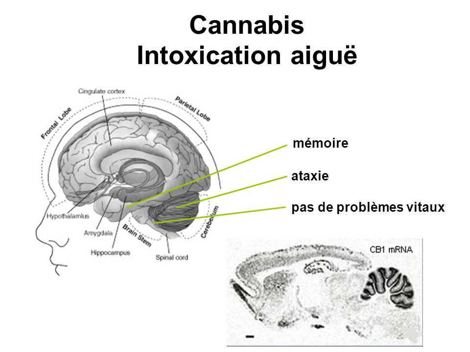 Cannabis Intoxication aiguë