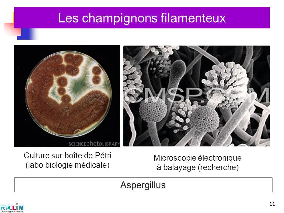 Les champignons filamenteux