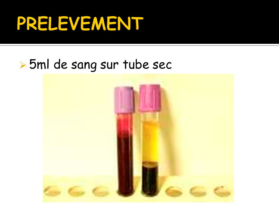 PRELEVEMENT 5ml de sang sur tube sec
