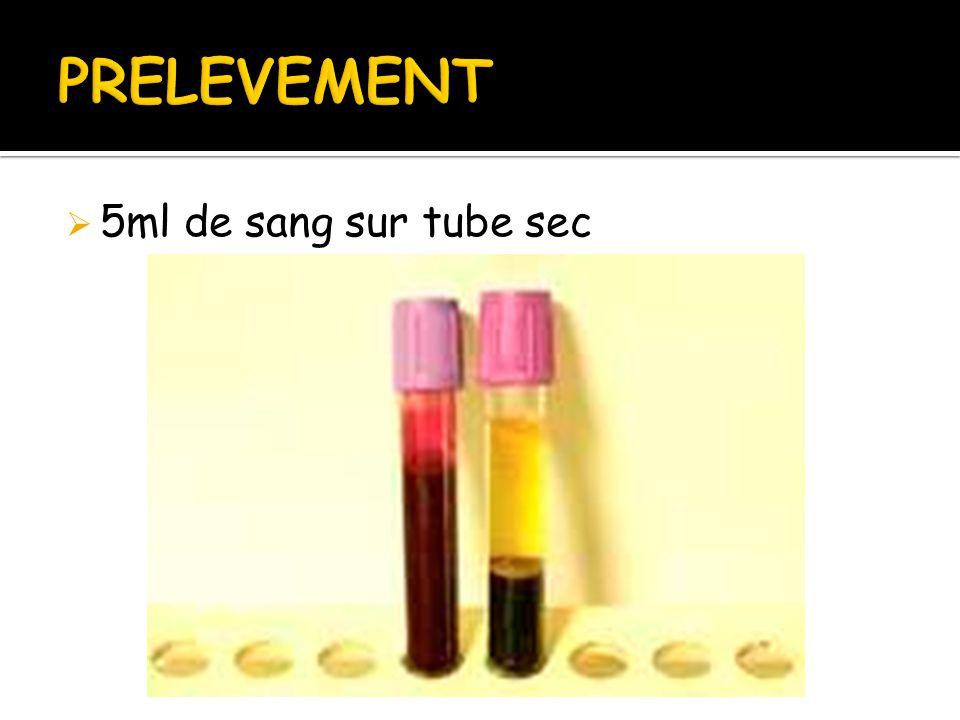 PRELEVEMENT 5ml de sang sur tube sec