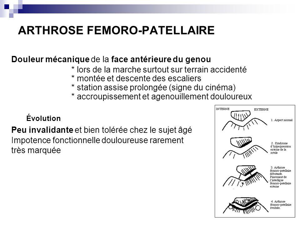 ARTHROSE FEMORO-PATELLAIRE