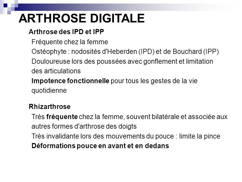 ARTHROSE DIGITALE Arthrose des IPD et IPP Fréquente chez la femme
