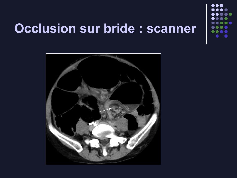 Occlusion sur bride : scanner