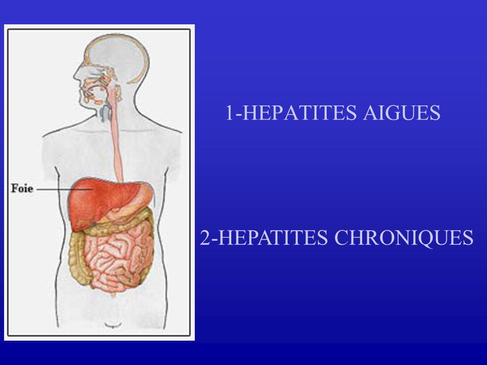 2-HEPATITES CHRONIQUES