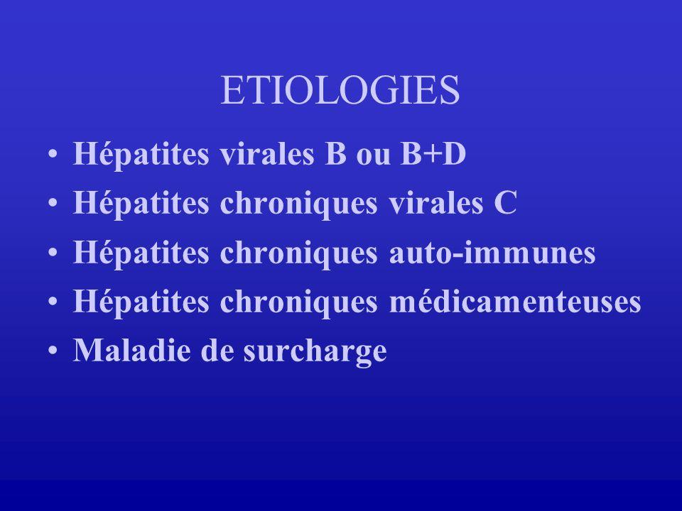 ETIOLOGIES Hépatites virales B ou B+D Hépatites chroniques virales C
