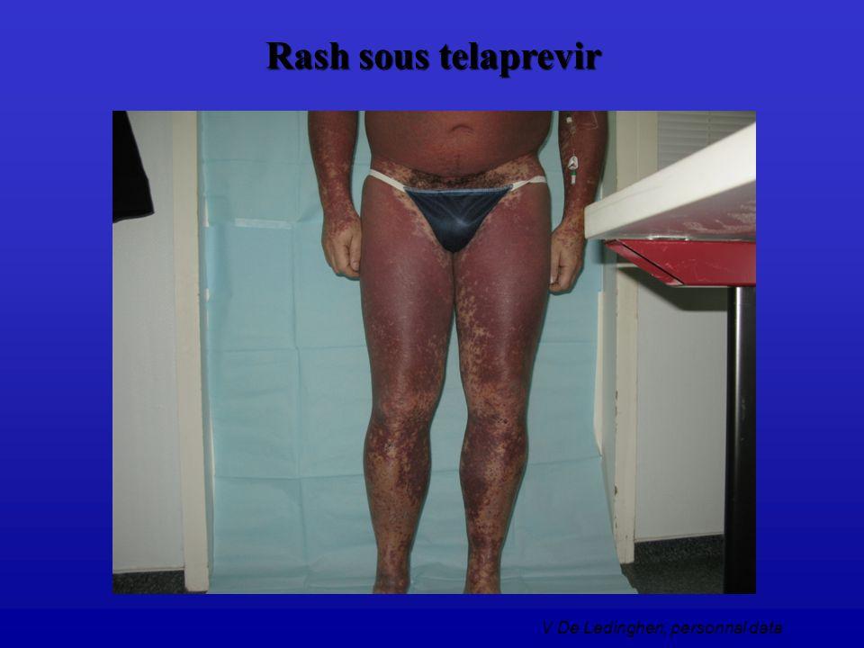 Rash sous telaprevir V De Ledinghen, personnal data