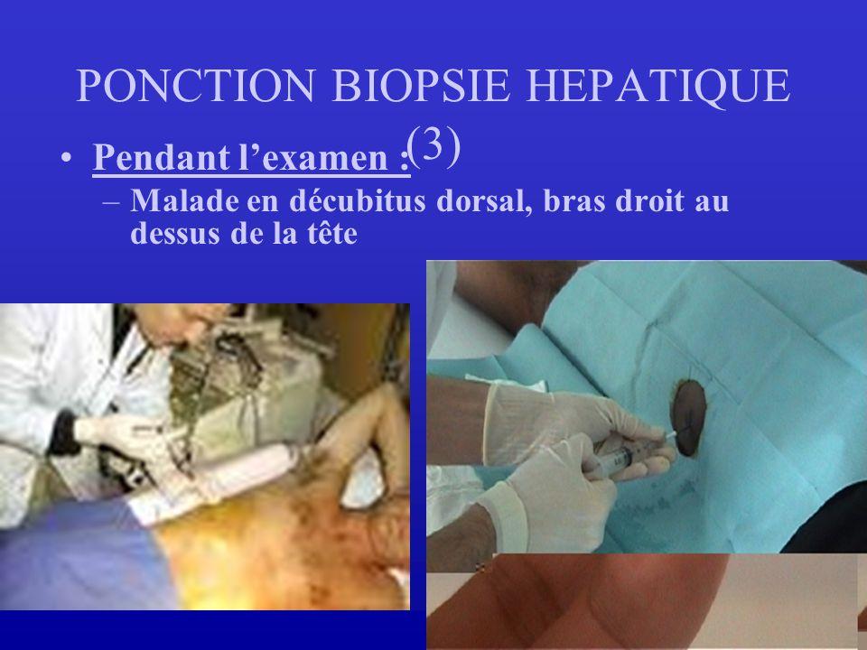 PONCTION BIOPSIE HEPATIQUE (3)