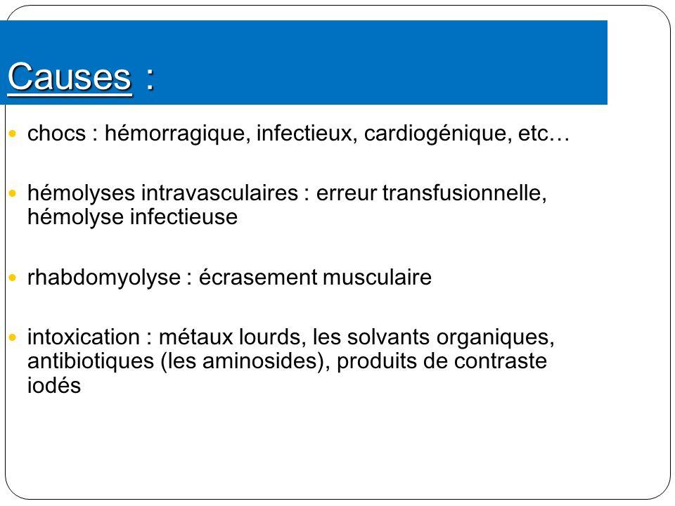 Causes : chocs : hémorragique, infectieux, cardiogénique, etc…