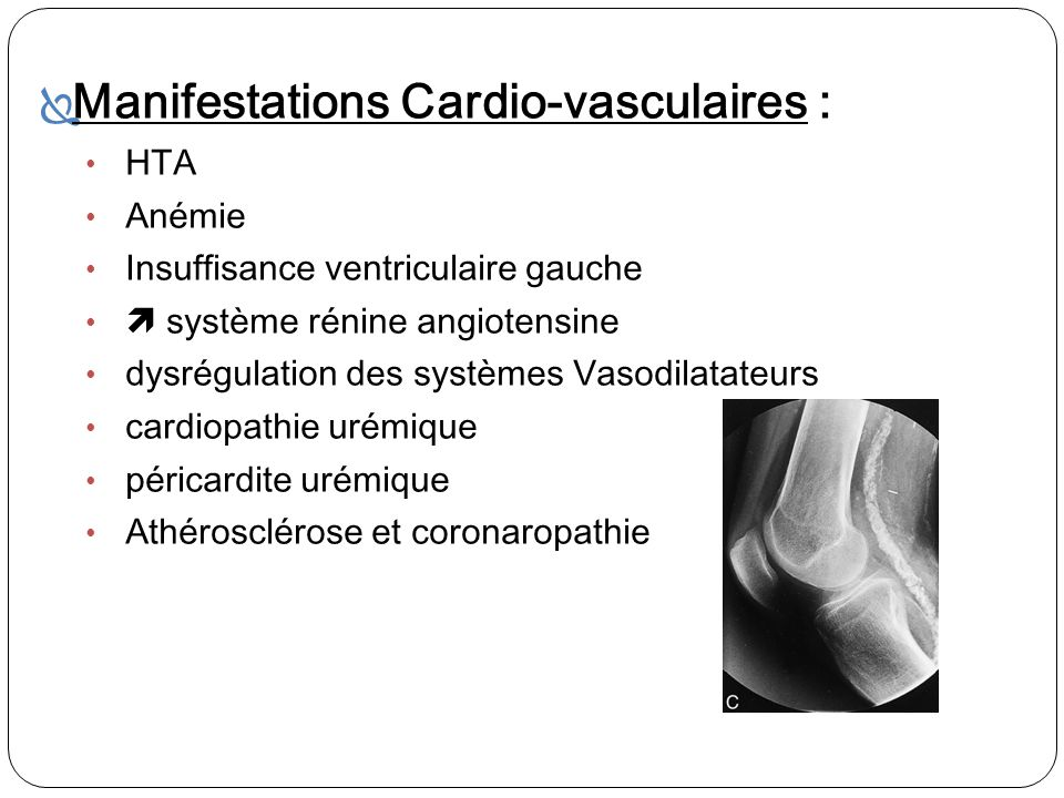 Manifestations Cardio-vasculaires :