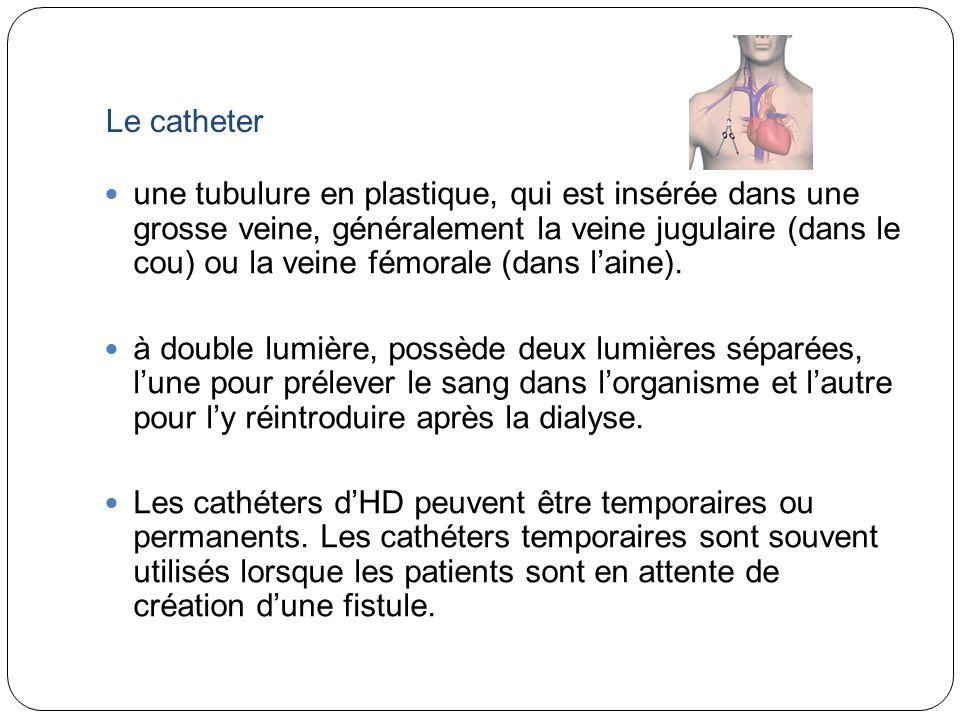 Le catheter